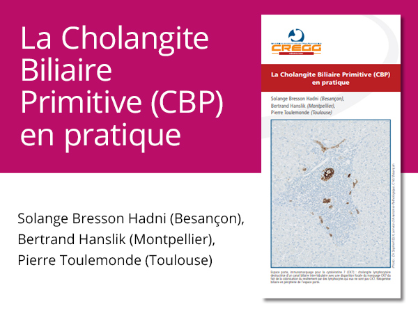 La Cholangite Biliaire Primitive (CBP) en pratique
