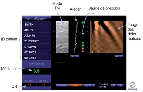 Écran de lecture lors d'une mesure d'élasticité au Fibroscan
